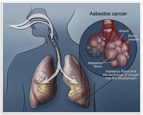 Asbestosis Lung Disease Info
