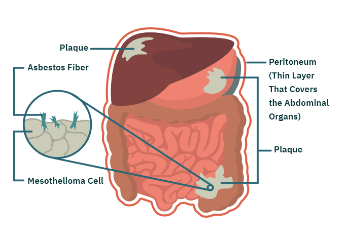 Parts of the Lung Affected by Peritoneal Mesothelioma