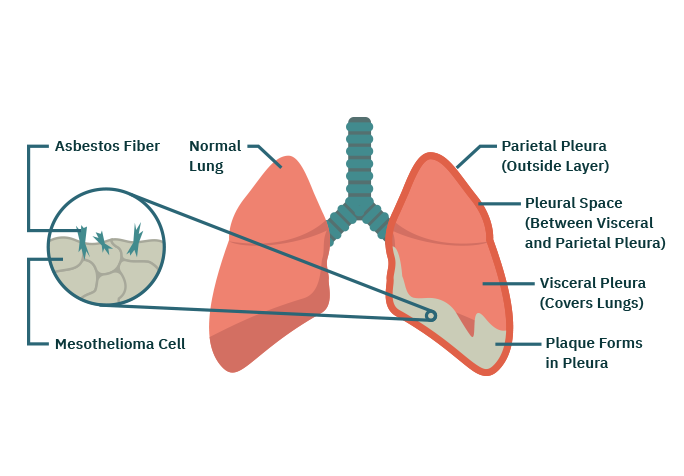 Parts Of The Lung Affected By Pleural Mesothelioma