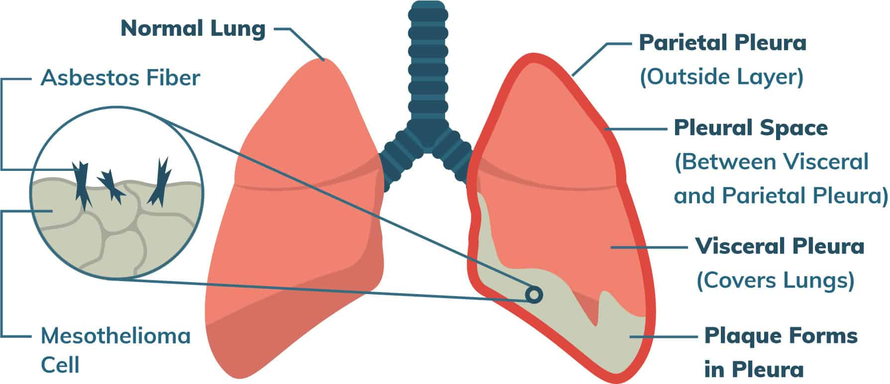 Diagram of Pleural Mesothelioma