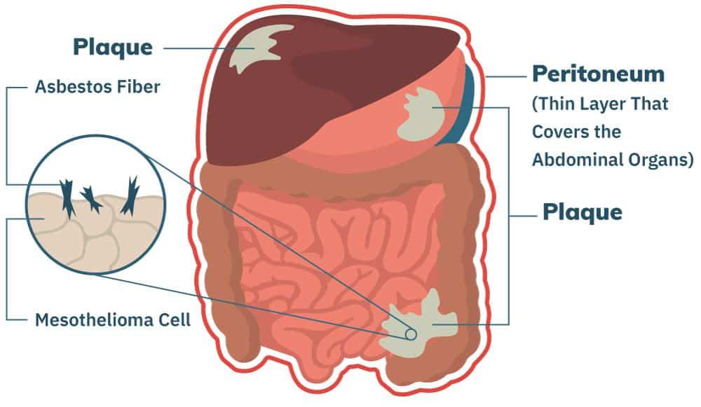 Peritoneal Mesothelioma