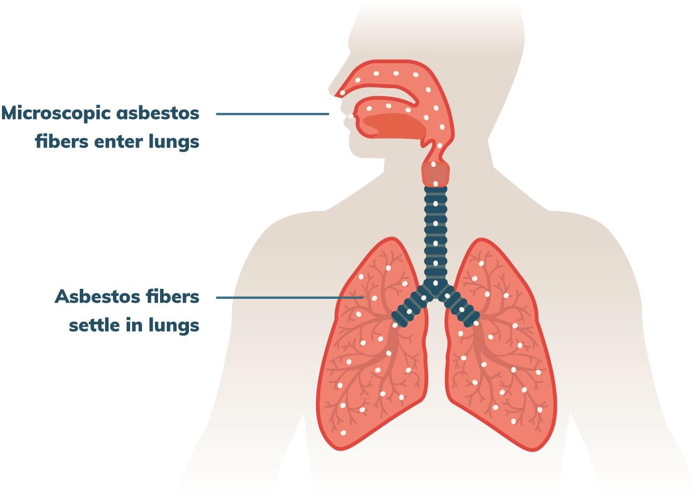 Asbestos Exposure | Types of Exposure, Health Risks & Prevention