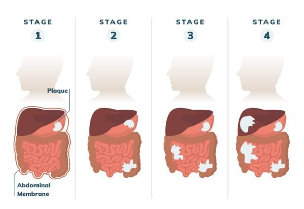 Peritoneal Mesothelioma Stages