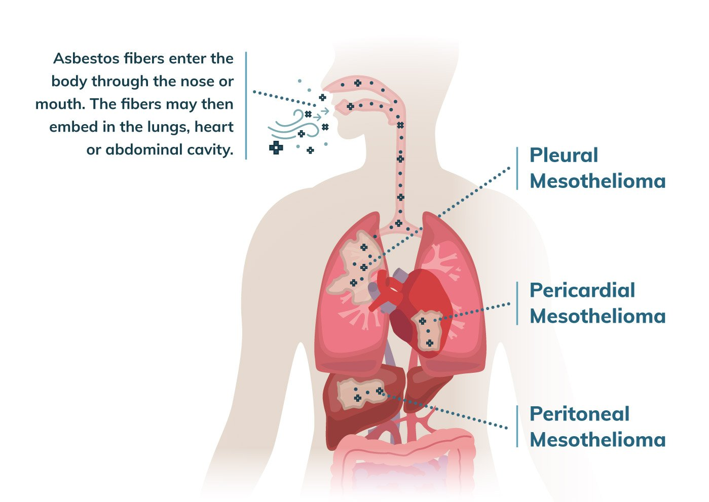 How Asbestos Causes Mesothelioma