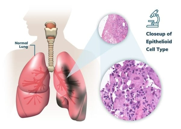 Epithelioid Pleural Mesothelioma