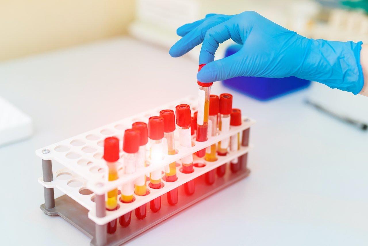 GATA3 Mesothelioma Biomarker