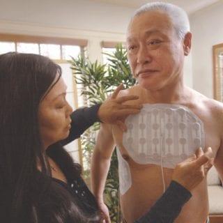 Tumor Treating Fields for Mesothelioma