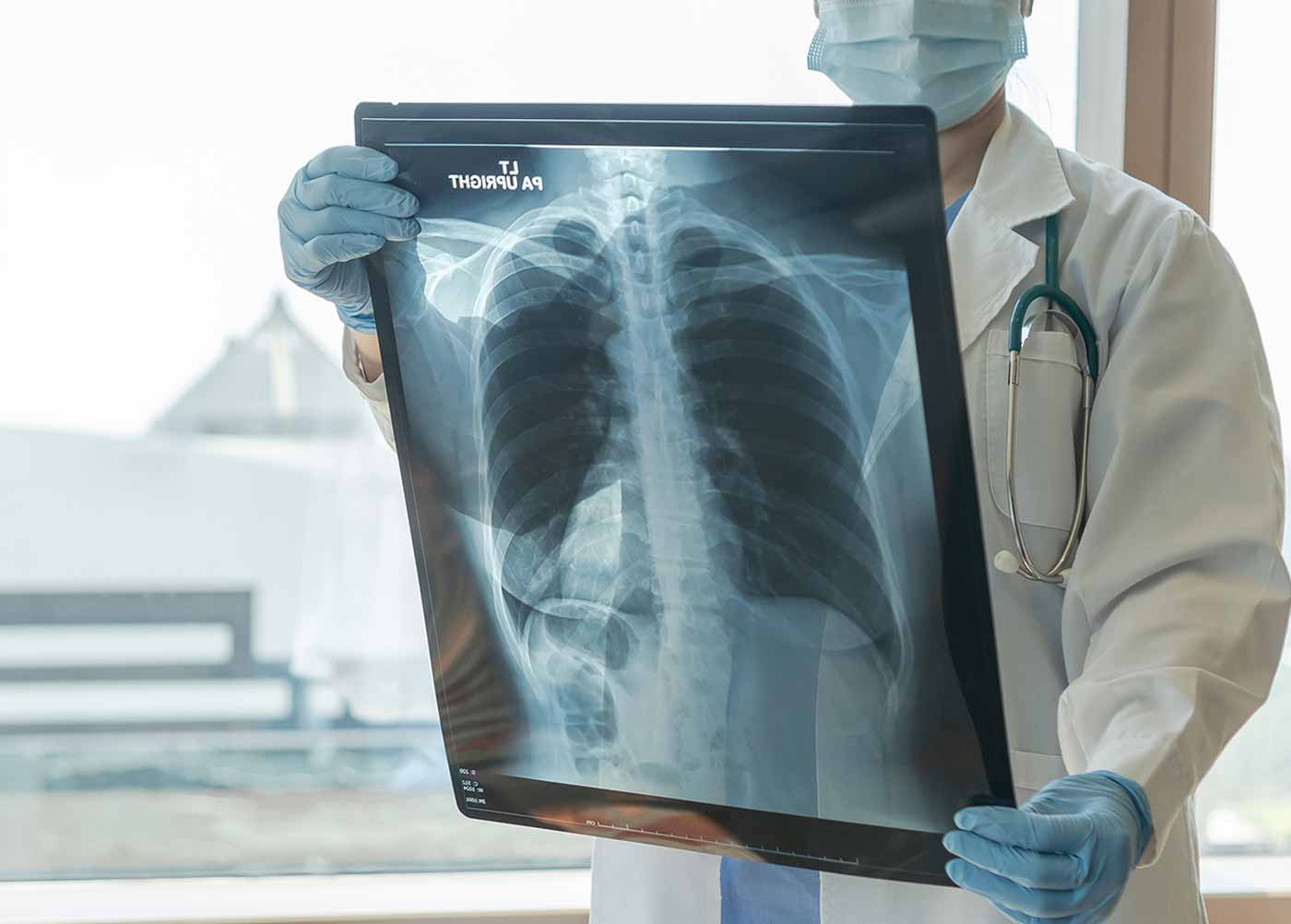 TNM Staging System for Mesothelioma