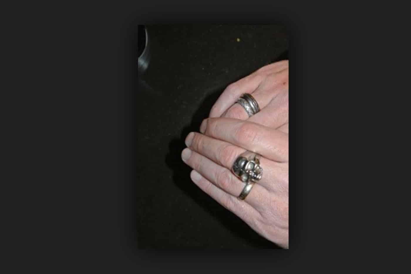 Mesothelioma caregiver Cameron Von St. James' skull ring