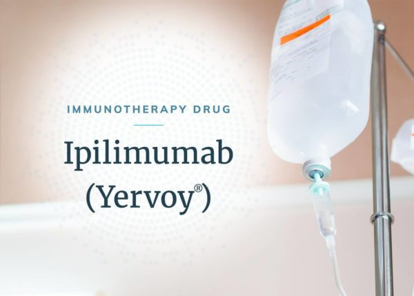 IV drug solution in a hanging bag containing ipilimumab, an immunotherapy drug for mesothelioma.